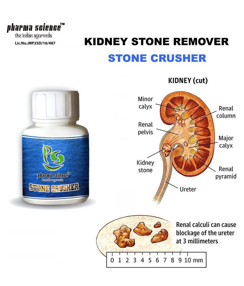 Pharma Science Ayurveda Treatment Kidney Stone Powder 20 gm