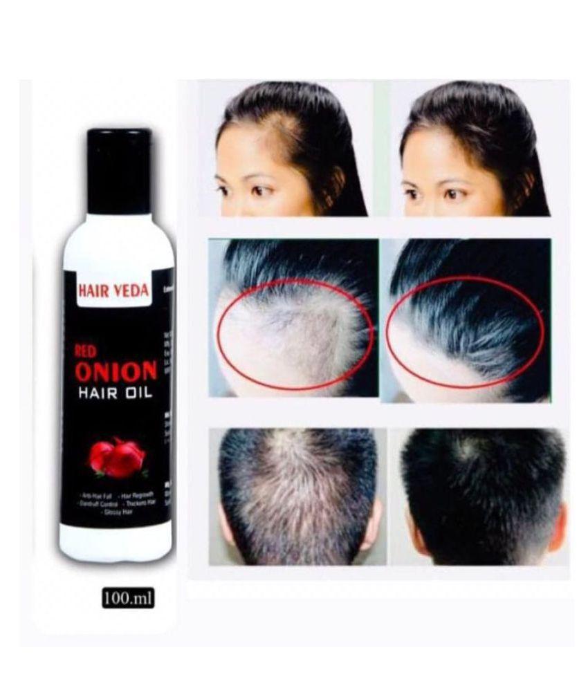 Hair Veda Red Onion Hair Oil For Hair Growth & Hair Fall 100 mL